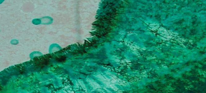 a n c e s t o r a d i o: a triptych by melannie monoceros